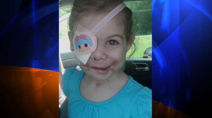 KFC Attempts to Make Amends to the Little Girl Disfigured by a Pit Bull Attack